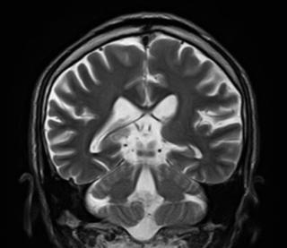 脳の画像1-1.jpg